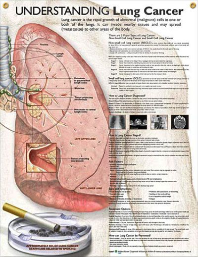 Laminated Lung Cancer (d)Anatomy Posters, Medical Nursing, Lungs Cancer Non, Small Cell, Cancer Awareness, Nursing Schools, Cell Lungs, Cancer Askdoctorhansen, Cancer Non Small