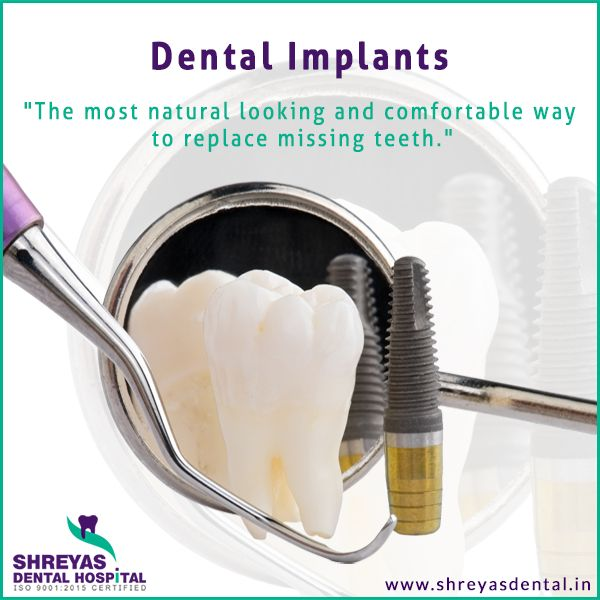 #Dental #implants are replacement tooth roots. These provide a strong foundation for fixed or removable replacement teeth that are made to match your natural teeth. To know more click here : http://www.shreyasdental.in/advanced-technique-of-implants/