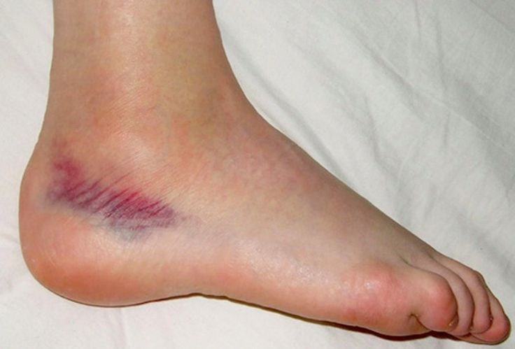 Rehabilitation procedures for a sprained ankle - HSC PDHPE