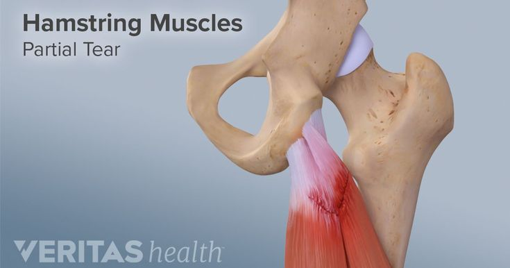 As with most musculoskeletal injuries, acute hamstring injuries can often be diagnosed with a patient history and physical exam. Sometimes imaging tests are needed.