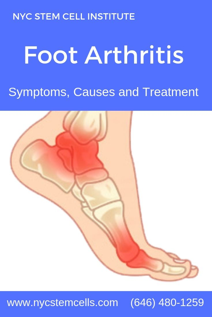 11 effective home remedies for arthritis