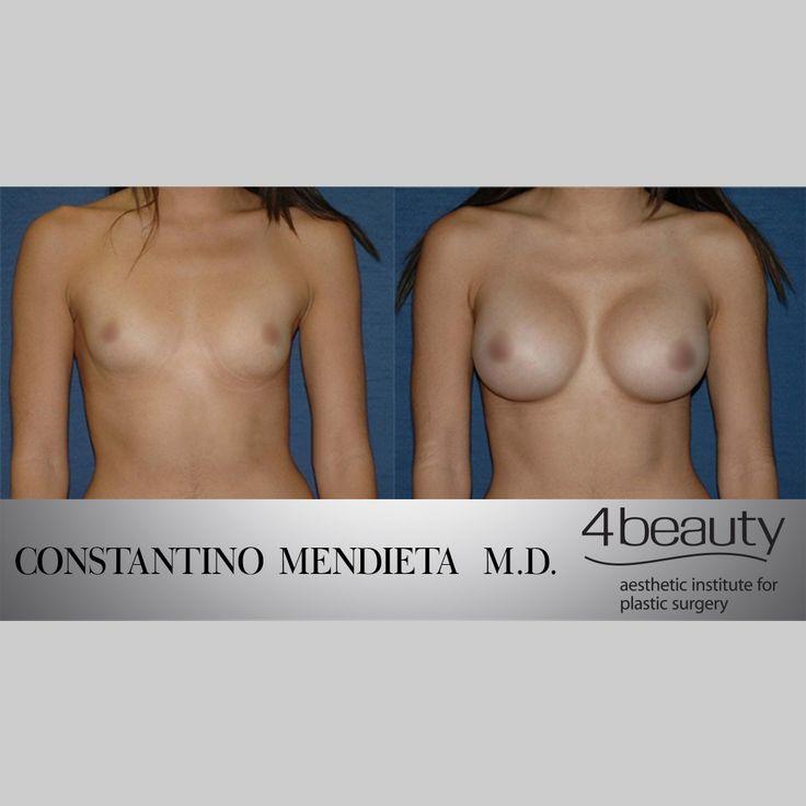 Before and After #DrMendieta #BodyByMendieta #breastaugmentation #breastimplants #siliconeimplants #silicone #implants #plasticsurgery ©4beauty