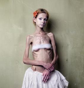 blog pro ana, paola orrico, anoressia, disturbi alimentari, gabbiano news
