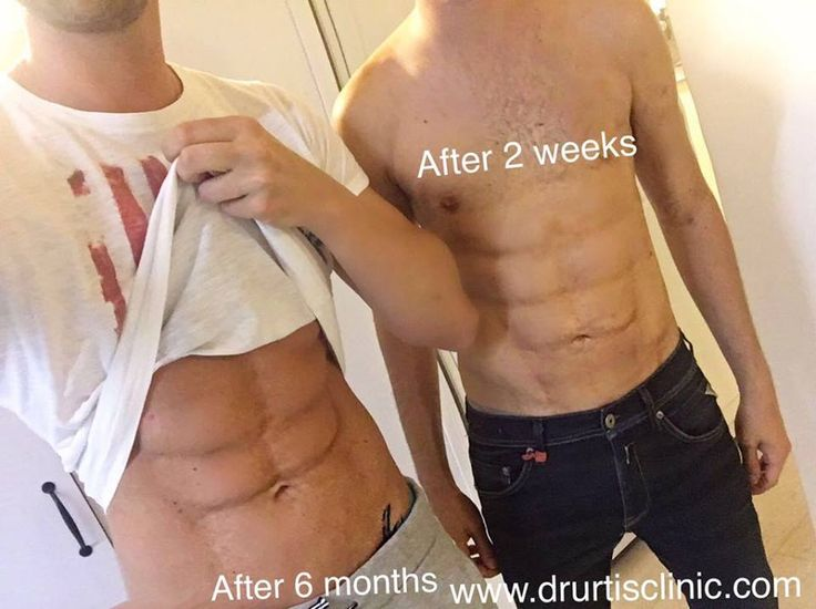 Are U ready for summer 2k16?? ☀️ on the picture my abdomen AFTER 6 month And the other patient on the right after 2 weeks from the surgery NELLA FOTO a SINISTRA IO con i miei addominali DOPO 6 mesi dallì intervento, Vicino a me un altro paziente dopo 2 settimane dal intervento. ABS SIXPACK Sculpture / Scultura DEGLI ADDOMINALI surgical, permanent, localized ABDOMEN fat transfert And reshape . Please read the details below: Treatment : Sculpture of the abdomen with fat , Ialuronic acid and li