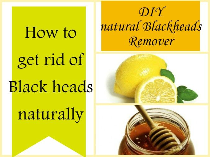 how to take care of blackheads on nose