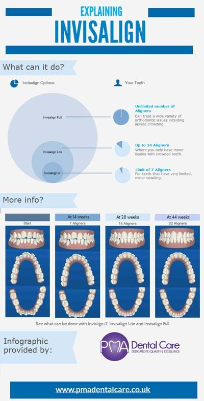 Crooked teeth, gaps, bite problems and a clicking jaw are all signs that you might need braces. Check out this infographic from an orthodontist in Gravesend, Kent to learn about Invisalign clear braces options.