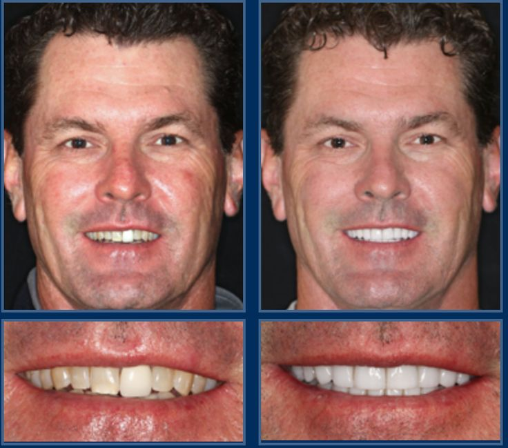 We can't get over how handsome he with his new Austin smile makeover! Just 2 visits to transform your smile.  #Smile #SmileMore #BeautifulSmile #AustinCosmeticDentist #AustinCosmeticDentistry #BestCosmeticDentist #Dentist #AustinDentist #DentalMakeover #ATX #Austin #CosmeticDentist #CosmeticDentistry #PicOfTheDay  #love #PhotoOfTheDay #2VisitSmileMakeover #Smilemakeover #AustinSmileMakeover #AustinVeneers #VeneersForTeeth #DentalVeneers #PorcelainVeneers #PorcelainBridges