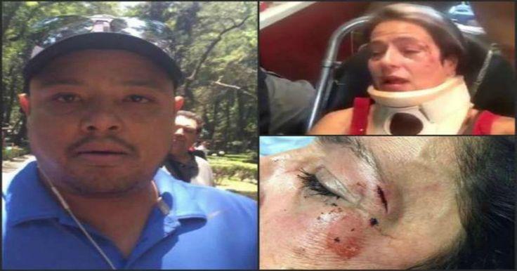 El pasado domingo fue agredida la actriz mexicana América Gabriel, por un hombre al que le pidió recoger las heces de su perro que este había hecho por el camino de los peatones en el Parque México cuando el hombre junto con una mujer paseaban montados en sus bicicletas al animal.