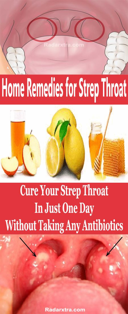 A bacterial infection of the throat, strep throat often makes the throat feel sore and scratchy. Common signs and symptoms of strep throat include throat pain, difficulty swallowing, red and swollen tonsils, red spots on