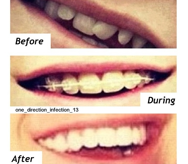He had the most perfect smile before, during and after he had his braces. ❤
