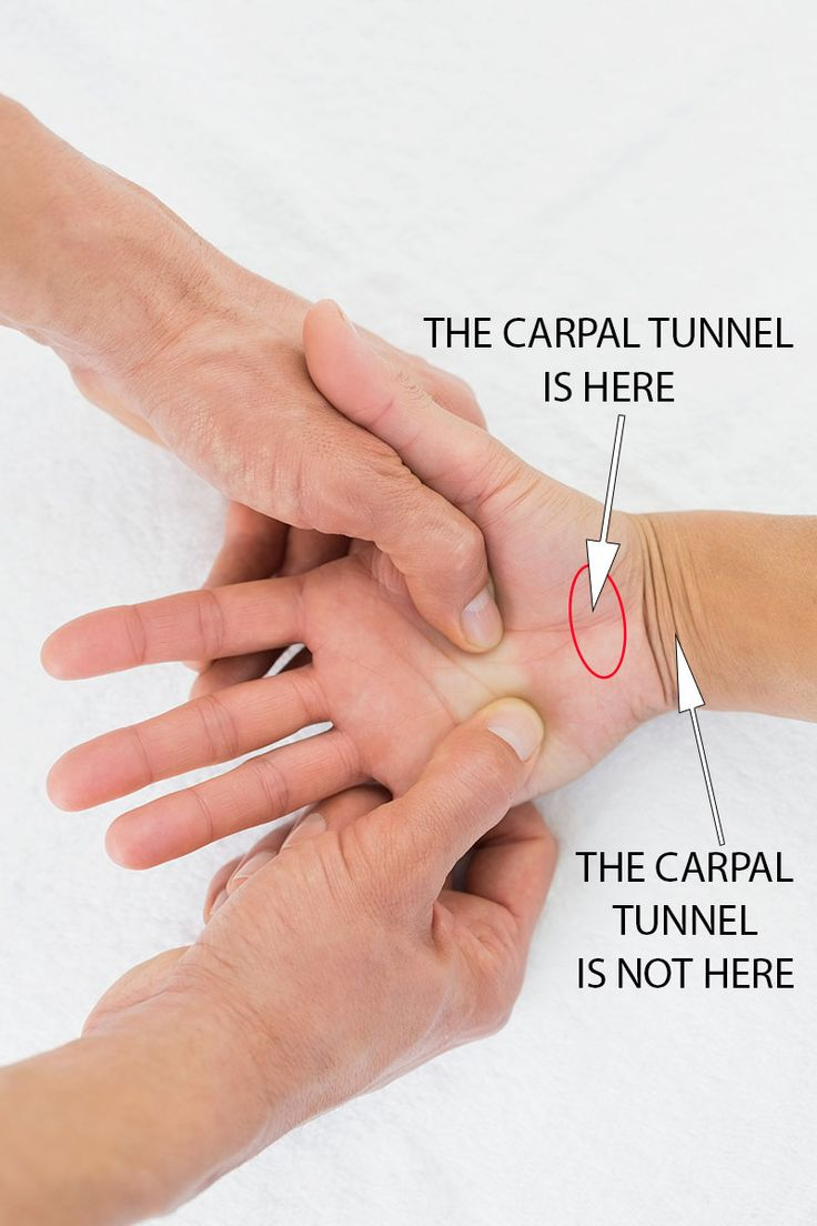 The Carpal Tunnel is at the base of the hand, not in the wrist as many mistakenly believe.  It is important to understand where it is if it is going to be treated in the correct way.  The Carpal Solution Treatment provides gentle consistent stretching action around the Carpal Tunnel for 224 hours over a 6 Week Protocol developed by Doctors.   This is powerful gentle therapy that works for 97% of people with Carpal Tunnel Syndrome Symptoms.