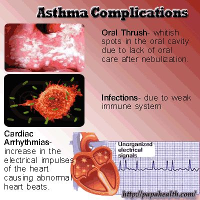 Side effects and treatments of asthma
