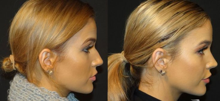Rhinoplasty Before and After Gallery (Female)