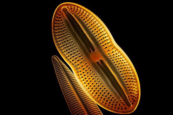 Rasterelektronenmikroskop mit 3000-facher Verrgrößerung von Kieselalgen.; Rechte: Interfoto