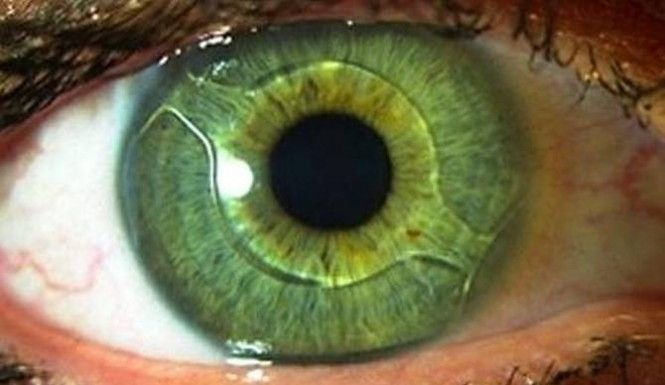 """Eye Implant Could Make Glasses Obsolete 