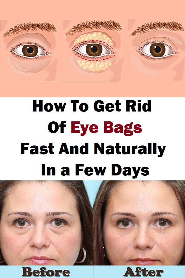 How To Get Rid Of Eye Bags Fast And Naturally In a Few ...
