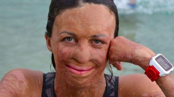 This humanitarian tells us how to stay real when you're Instagram famous Read more Technology News Here --> http://digitaltechnologynews.com  Turia Pitt is hilarious. She loves a laugh. And when she speaks people listen.     And it's not just because in 2011 she made headlines for miraculously surviving a Western Australian bushfire leaving her in a coma with burns to almost 70 percent of her body. It's not just because she's now an unparalleled motivational speaker whose resilience has…