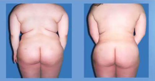 La #liposucción laser es un #tratamiento que con muy poco dolor y poco riesgo, sus #resultados son increibles, más info en la web