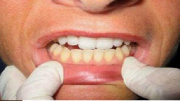 Pourquoi vous devriez nettoyer vos dents avec de l'huile de coco ! les effets…