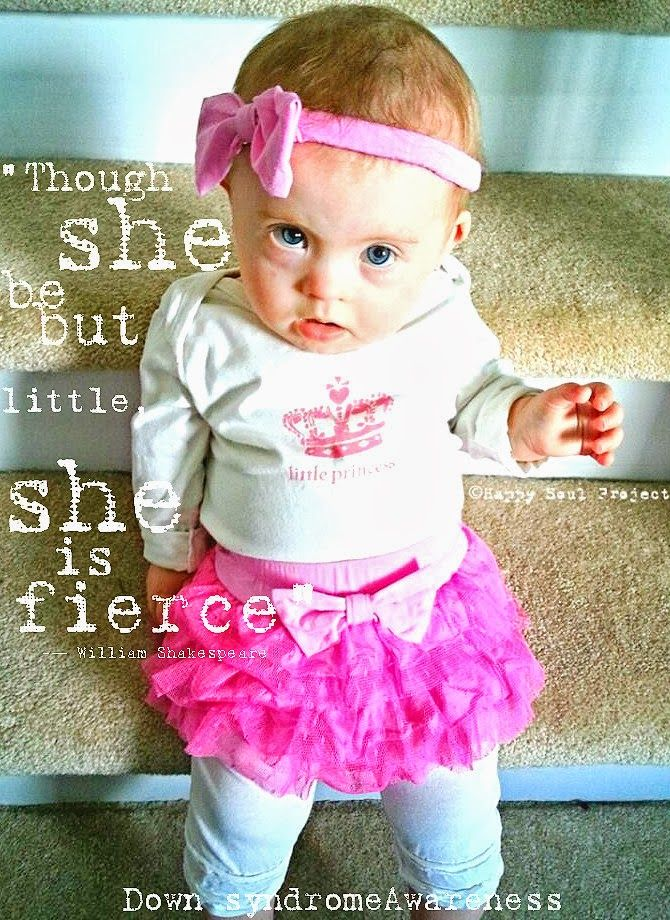 down syndrome baby girl - Google Search