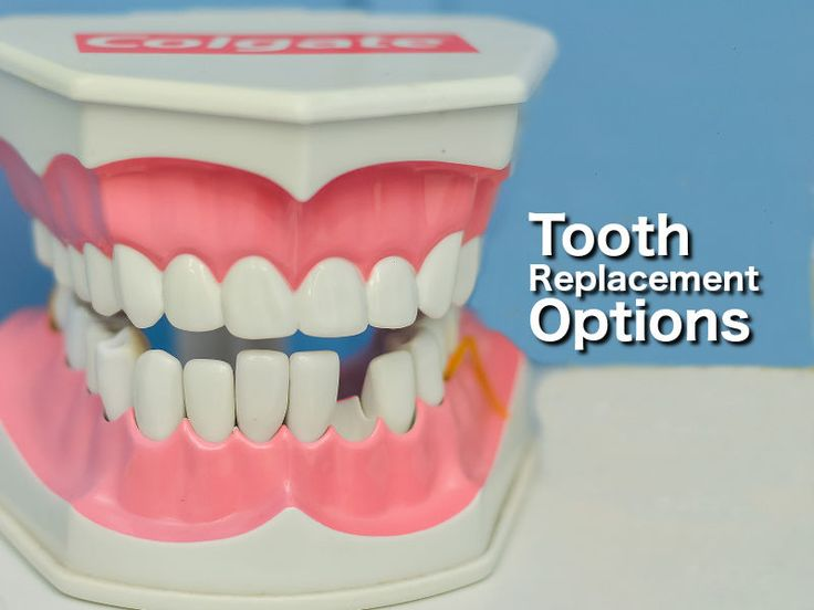 how to ask someone about missing tooth