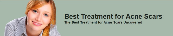 besttreatmentforacnescars.org/  Best Treatment for Acne Scars  A lot of people meet acne and pimples for the first time ever in their adolescence. However, most of these people find that they are left with scars on their face with a lot of really ugl  how to get rid of acne scars