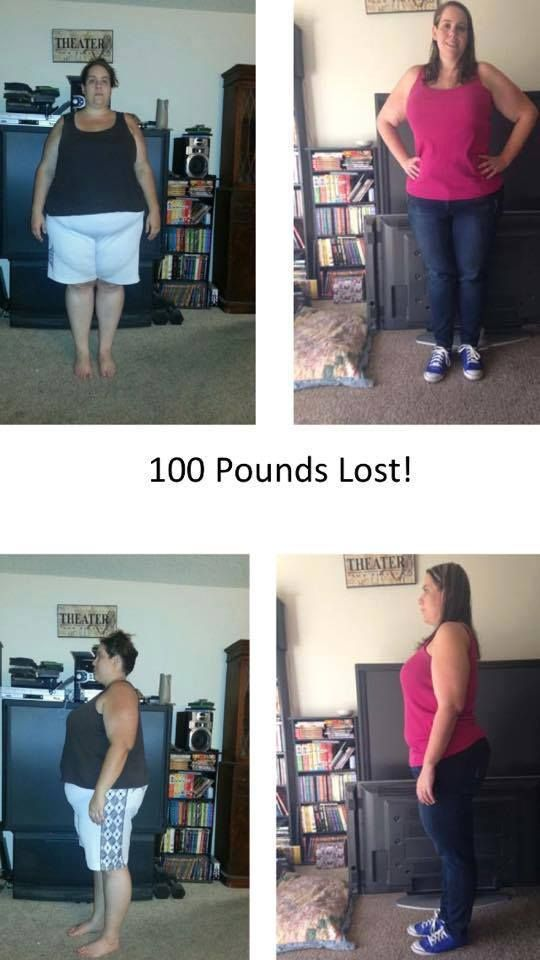 Company gastric bypass weight loss journey blogs carb diets may