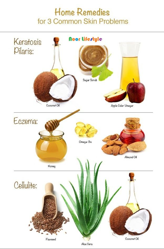 Healing Home Remedies for Eczema See More details at: http://bit.ly/1HMLfTb