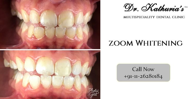 Zoom Whitening at Dr. Kathuria's Multispeciality Dental Clinic #ZoomWhitening