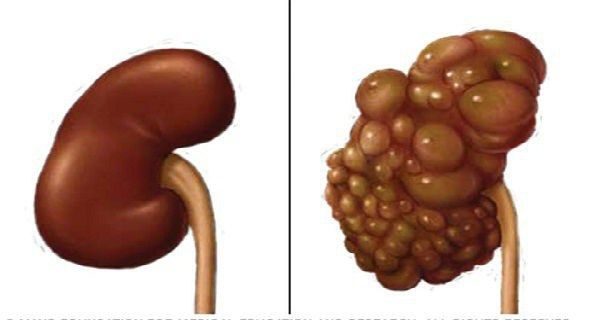 If You Want to Protect You Kidneys Don't Do This!!!