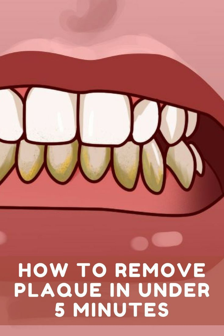 How to remove plaque in under 5 minutes - You are in for a world of hurt if you don't have healthy teeth when SHTF #plaque #teeth #toothcare #oralhealth #naturalplaqueremoval