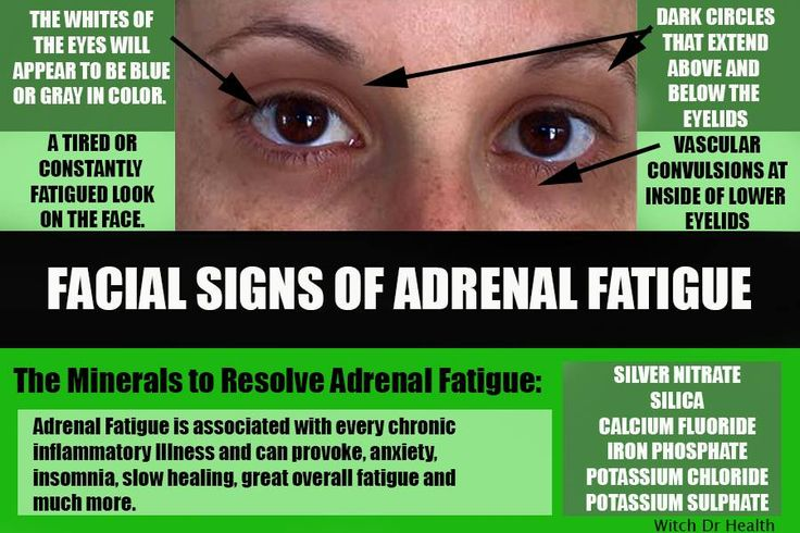 the facial signs of adrenal fatigue my articles pinterest adrenal fatigue the o 39 jays and. Black Bedroom Furniture Sets. Home Design Ideas