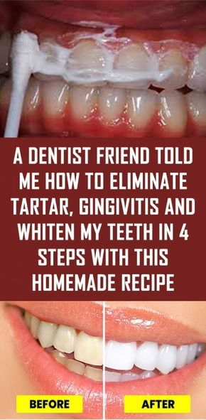 A Dentist Friend Told Me How To Eliminate Tartar Gingivitis And