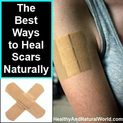 The Best Ways to Heal Scars Naturally. Although some people love their scars because it makes them look tough, or so they think, most of us don't really like the appearance of scars, especially scars on our face or other highly visible places. There are many professional cures, lotions, and creams available on the market that help to heal scars. However those are very expensive, loaded with chemicals, and often don't give the desired result.