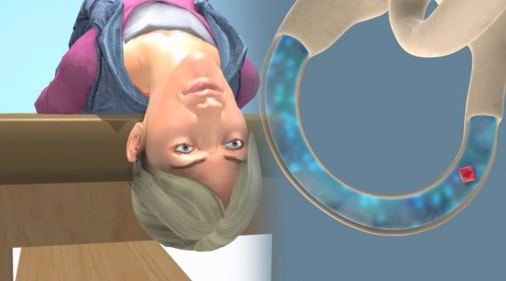 Video showing deep head hanging maneuver to treat superior canal BPPV.