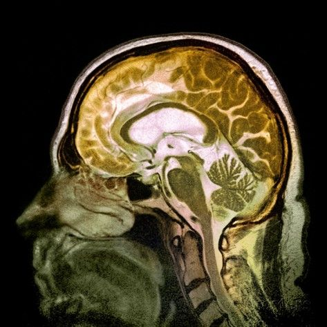 Alcoholic Dementia, MRI Scan Photographic Print by Du Cane Medical at AllPosters.com