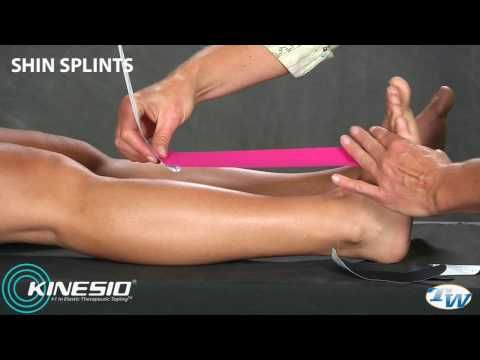 Kinesio Taping for Shin Splints - I will need this over the next few months as I am prone to splints :/