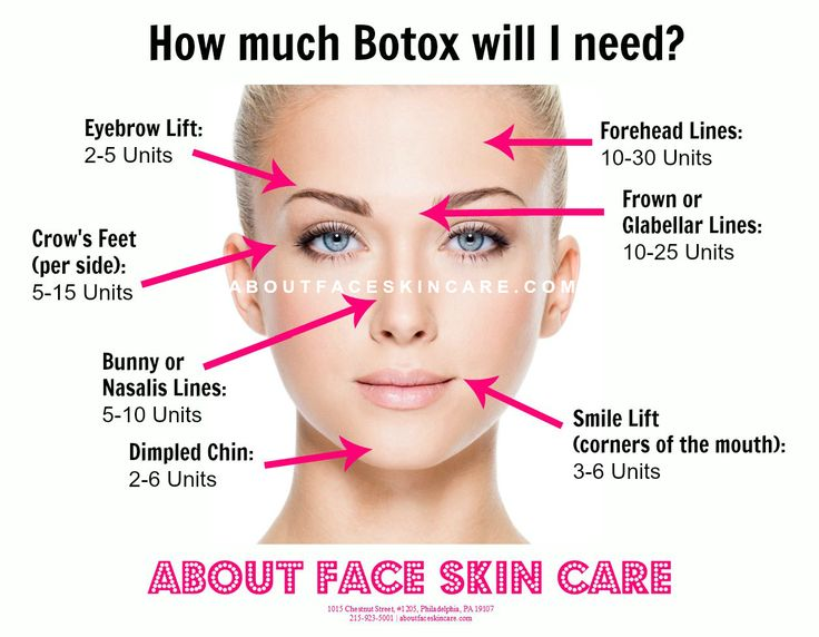 The age-old* question: how much #Botox will I need? *nopunintended #foreveryoung