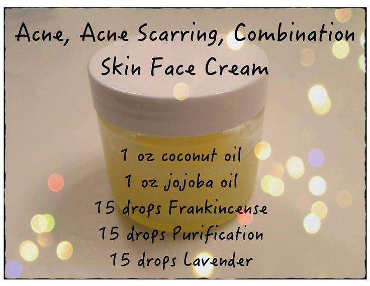 Acne, Acne Scarring Combination Skin Face Cream, courtesy of an unknown…