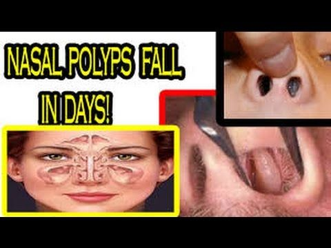 Post Nasal Drip Natural Remedies Australia