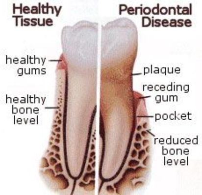 1000+ images about Dental Care on Pinterest | Root canal treatment, Cad cam and Cosmetic dentistry