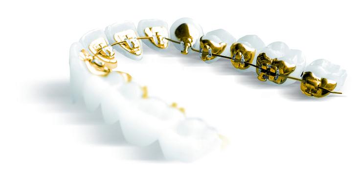 #ortodoncia para adultos #incognito, un tratamiento invisible con #brackets de oro que se colocan en la cara interna de los dientes
