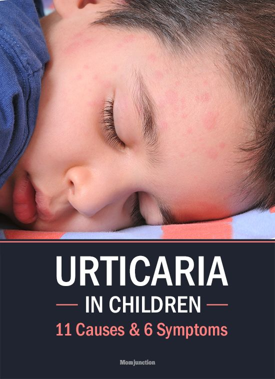 Hives Or Urticaria In Children – 11 Causes & 6 Symptoms You Should Be Aware Of