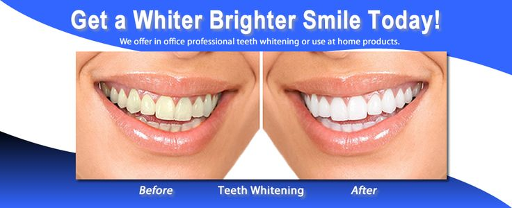 Lincoln Park Chicago Teeth Whitening