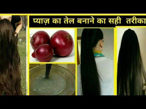How To Make Onion Hair Oil At Home : Super fast hair growth, Cure baldness and reduce hair-fall - YouTube