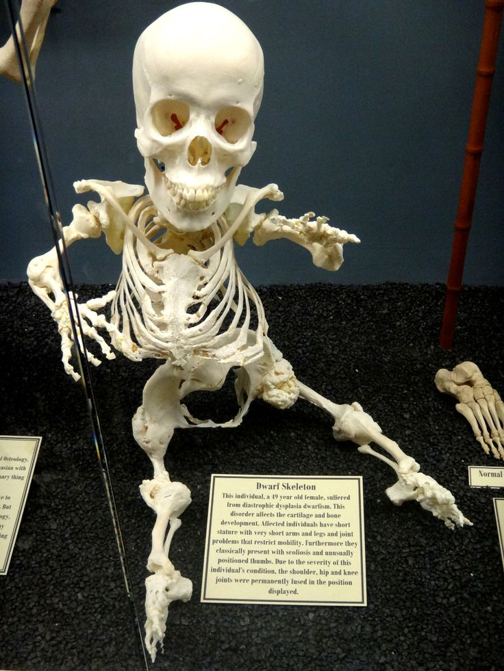 Some medical oddities at the Museum of Osteology