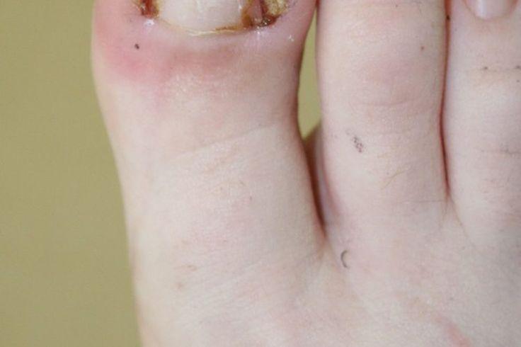 Cuál es el tratamiento para padrastros y uñas encarnadas | Muy Fitness