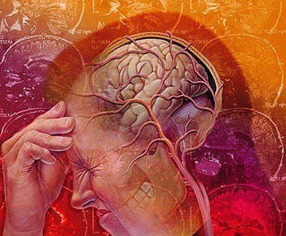 La neuralgia del trigémino