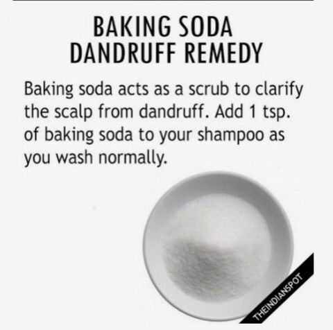 Natural Dandruff Cure #Beauty #Musely #Tip