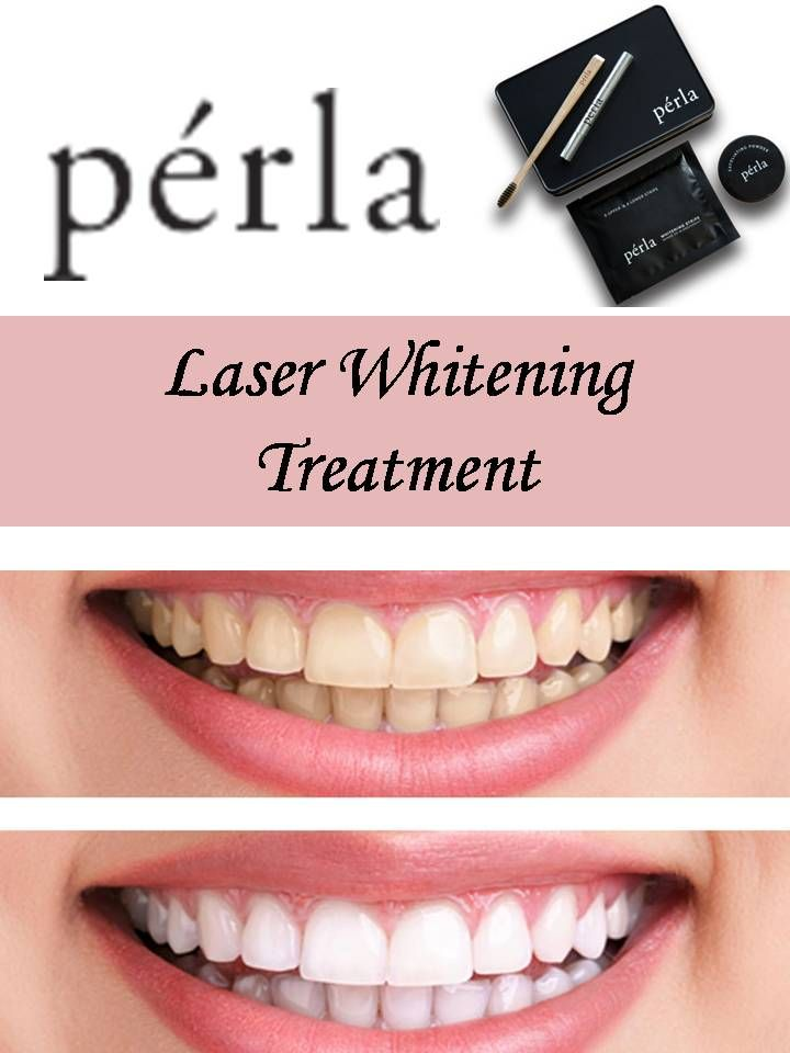 Laser teeth whitening cost treatment : Jewelry online free